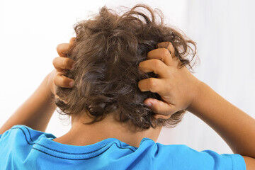 How to treat head lice