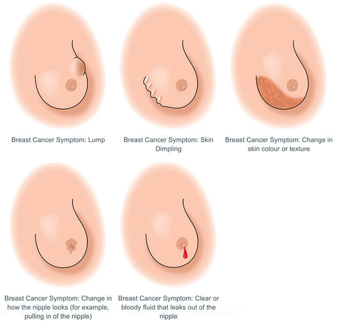 Be Breast Cancer Aware: How To Check Your Boobs