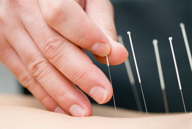 unsafe therapies for pregnancy acupuncture