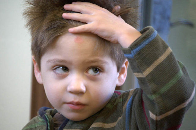 parents guide to child head injuries
