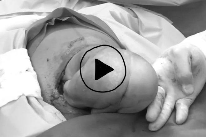 Gentle caesarean birth video