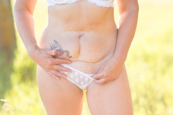 mother c-section scar (mothers beauty project)