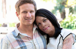 Turia Pitt and Michael Hoskin pregnant