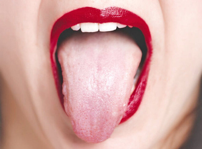 Tongue pulling for morning sickness