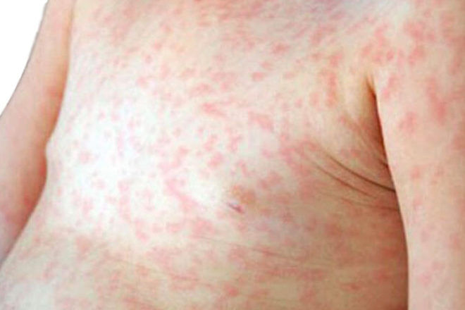 Measles outbreak in Brisbane