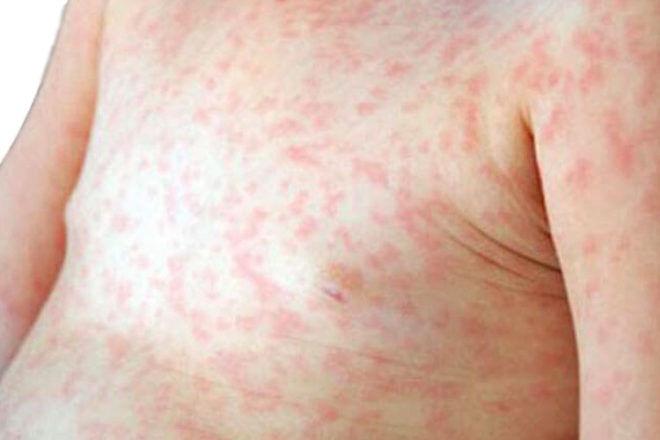 Measles outbreak in Brisbane