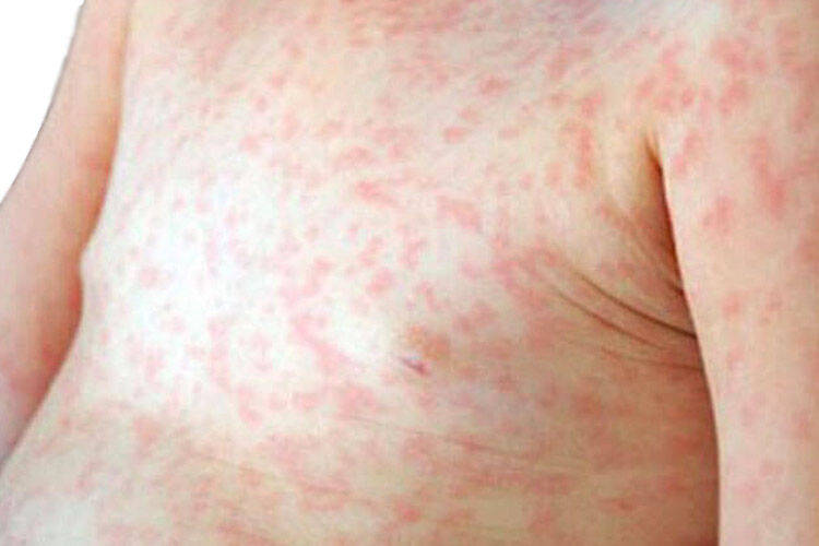 Measles outbreak in Melbourne
