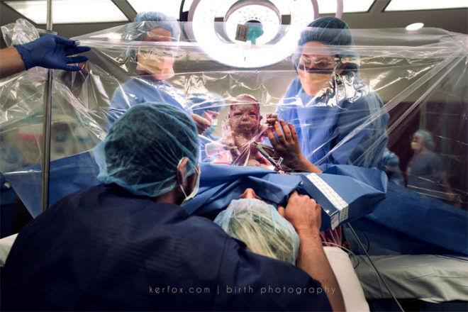 clear drape c section Kerfox birth photography