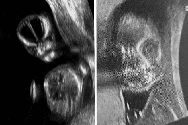 funny ultrasound images