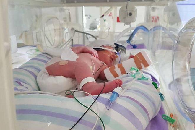 Pre-eclampsia birth story