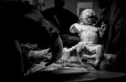 Queensland hospital bans birth photography