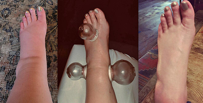 Jessica Simpson pregnancy swelling