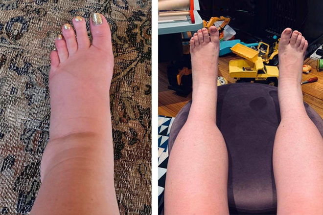 Pregnancy leg and ankle swelling