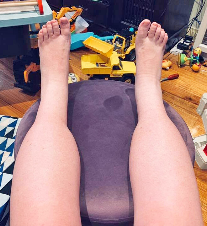 Leg swelling in pregnancy