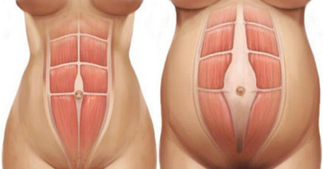 Abdominal muscle separation rectus distase