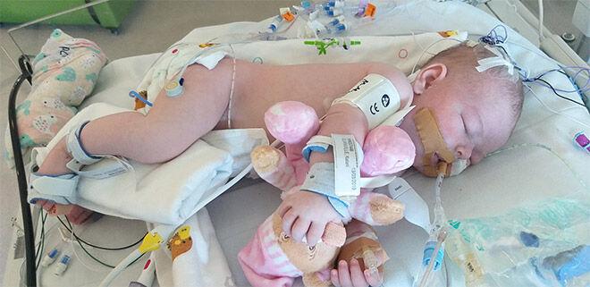 Shoulder dystocia birth