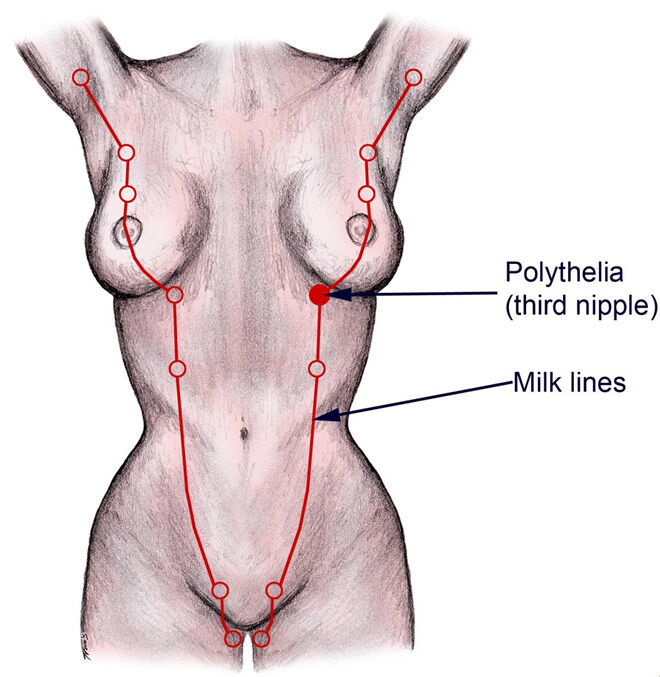 How a vulva can lactate